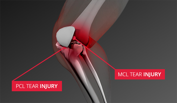 The image shows a person with PCL tear injury