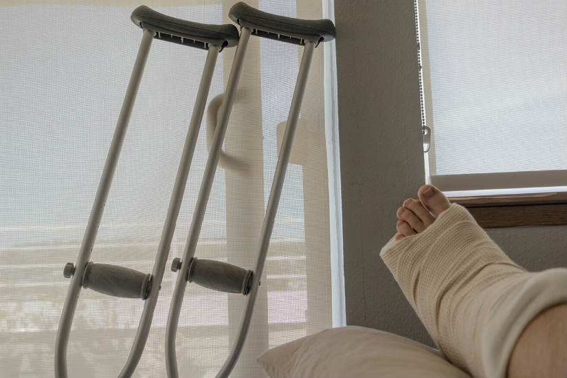 broken leg after car accident