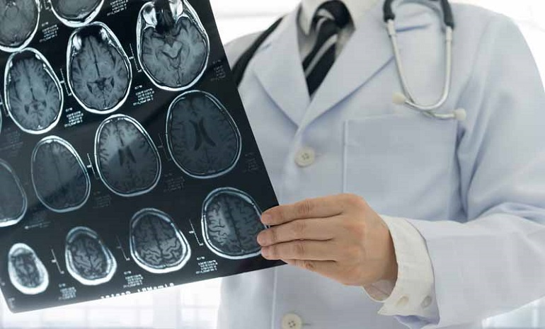 central florida car crash neurologists